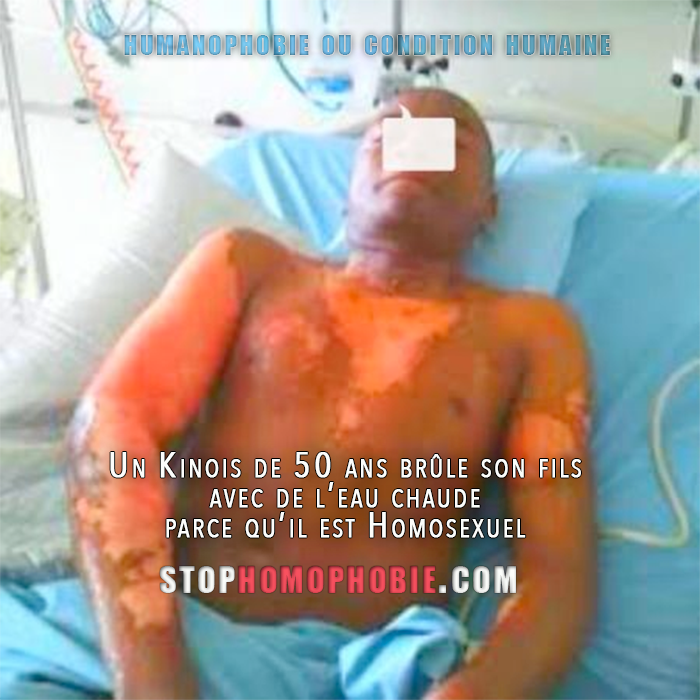 Un Kinois de 50 ans brûle son fils avec de l'eau chaude, car il est Homosexuel