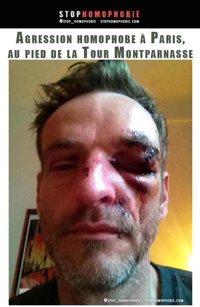 Justice : SOS homophobie partie civile suite à l'agression homophobe de la gare Montparnasse