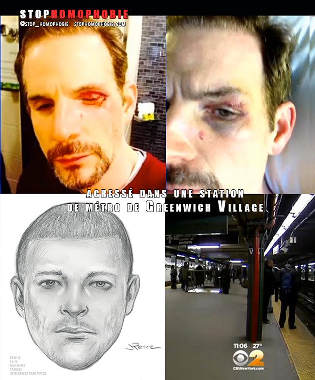 New York : un couple d'#homosexuels violemment agressé dans une station de métro pourtant bondée