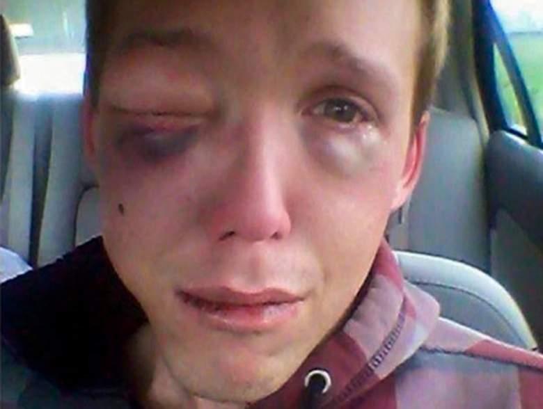 """Devin Norman, 26 ans, agressé violemment en raison de son """"homosexualité"""""""