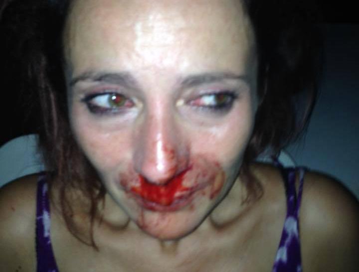 A Alès dans le Gard : Il « fracasse » sa fille en plein dîner parce qu'elle est homosexuelle