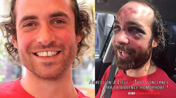 Agression homophobe à Liège : Injures et passage à tabac... la victime défigurée