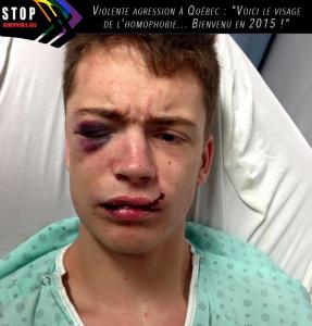 Violente-agression-à-Québec---Voici-le-visage-de-l'homophobie...-Bienvenu-en-2015