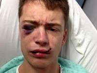 """Violente agression à Québec : """"Voici le visage de l'homophobie... Bienvenu en 2015 !"""""""