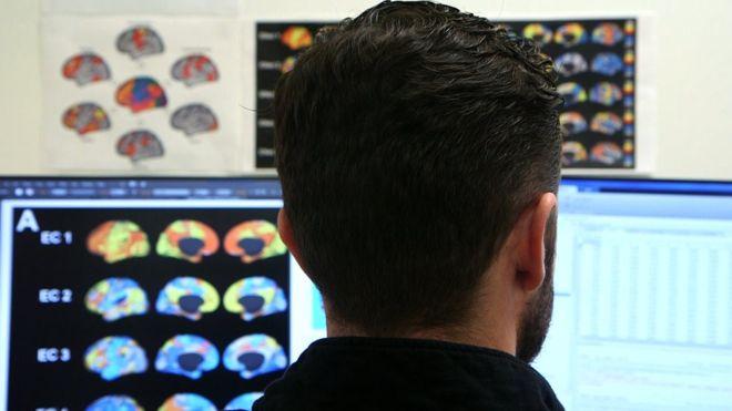 Berne dénonce les thérapies de « conversion » qui affectent la santé psychique et physique des LGBT
