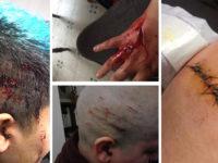 Bruxelles : un homme transgenre tunisien violemment agressé par des extrémistes religieux
