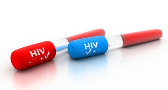VIH/Etude : les antirétroviraux réduisent le risque de transmission du virus au sein du couple