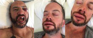 En week-end romantique à Mykonos, un couple gay britannique tabassé jusqu'à perdre conscience