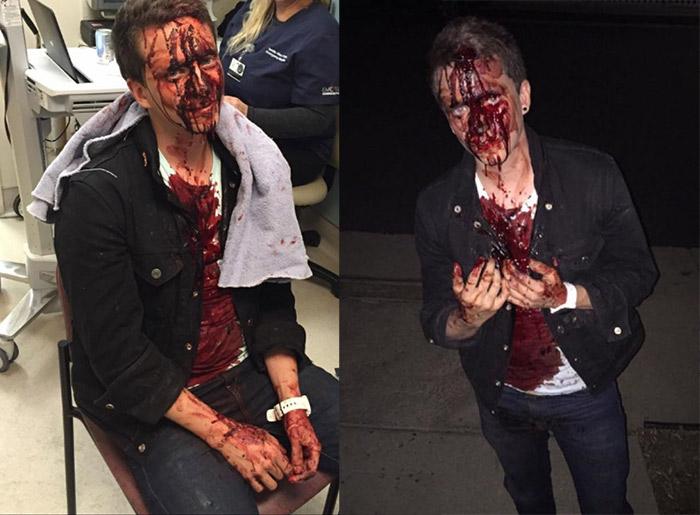États-Unis : Un jeune homosexuel agressé par des sympathisants républicains le soir de l'élection présidentielle