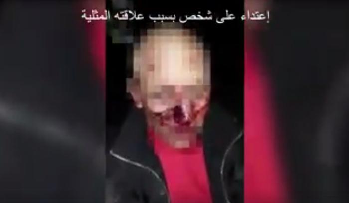 Maroc : Un homme torturé parce que « soupçonné » d'entretenir des rapports homosexuels (VIDEO)