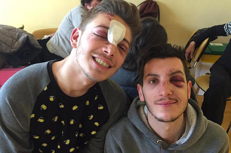 Agression homophobe à la sortie d'un club de Milan : « Traumatisme crânien, fracture du nez... »