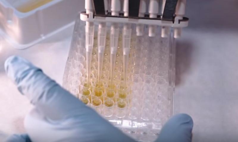 VIH/Sida : les trithérapies ont augmenté l'espérance de vie de dix ans, selon une étude britannique (VIDEO)