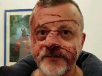 Agression « en groupe » d'un homosexuel à Strasbourg : « je n'arrêterai jamais le combat ! »