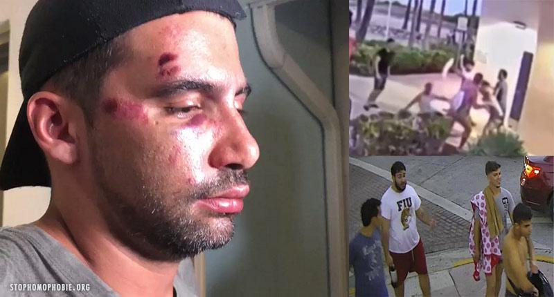 Miami Beach : un couple gay tabassé par 4 jeunes hommes après le défilé de la Pride (VIDEOS)