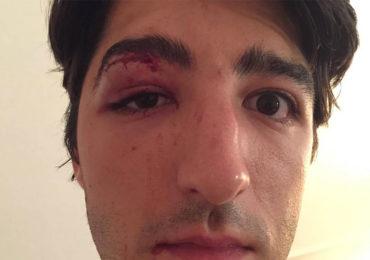 « Pas de PD ici » : Agressé en pleine rue à Paris, il témoigne en publiant une photo de son visage tuméfié