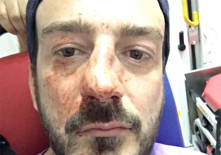 Guillaume Mélanie, président d'Urgence Homophobie, agressé à la sortie d'un restaurant en plein Paris (VIDEO)