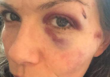Enquête ouverte après l'agression d'un couple de femmes qui s'embrassaient dans le 9ème arrondissement de Paris