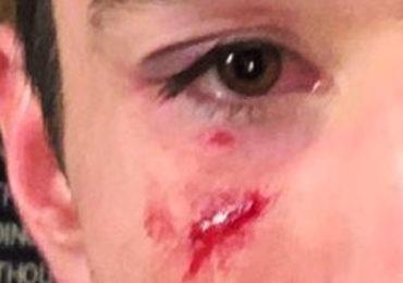 Nouvelle agression homophobe en bande organisée à Paris : Ils étaient 6 contre la victime !