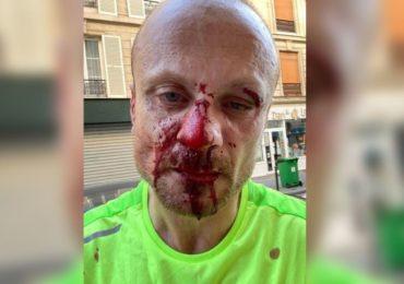 Paris : Agression homophobe en bande, en plein jour, en pleine rue, au cœur du XIe