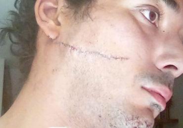Un couple homosexuel attaqué au couteau à Bordeaux